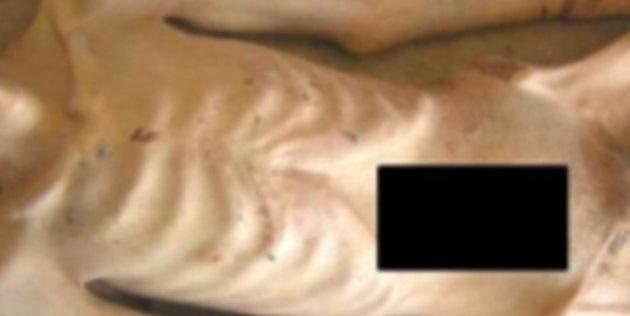சிரியாவில் 11,000 பேர் சித்திரவதை செய்யப்பட்டு படுகொலை | 55000 க்கும் அதிகமான புகைப்படங்கள் வெளிவந்துள்ளது
