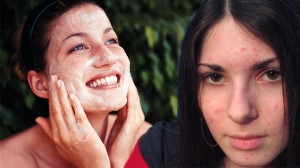 Pimple Marks-jpg-975