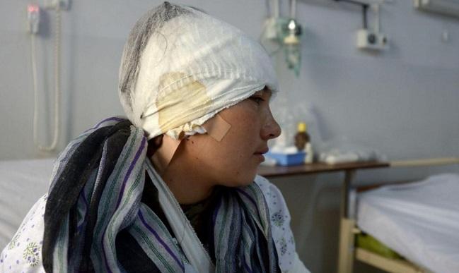 நடத்தையில் சந்தேகம் ஏற்பட்டு இளம்பெண்ணின் 2 காதுகளை துண்டித்த கணவர் | ஆப்கானிஸ்தான்