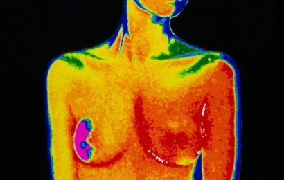 மார்பக புற்றுநோய்: சிகிச்சை எடுத்த 15 ஆண்டுகளுக்குப்பின் மீண்டும் நோய் தாக்கும் அபாயம்?
